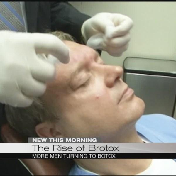 Growing number of men getting Botox_170132