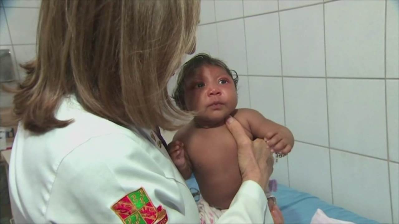 zika-expert-microcephaly_149597