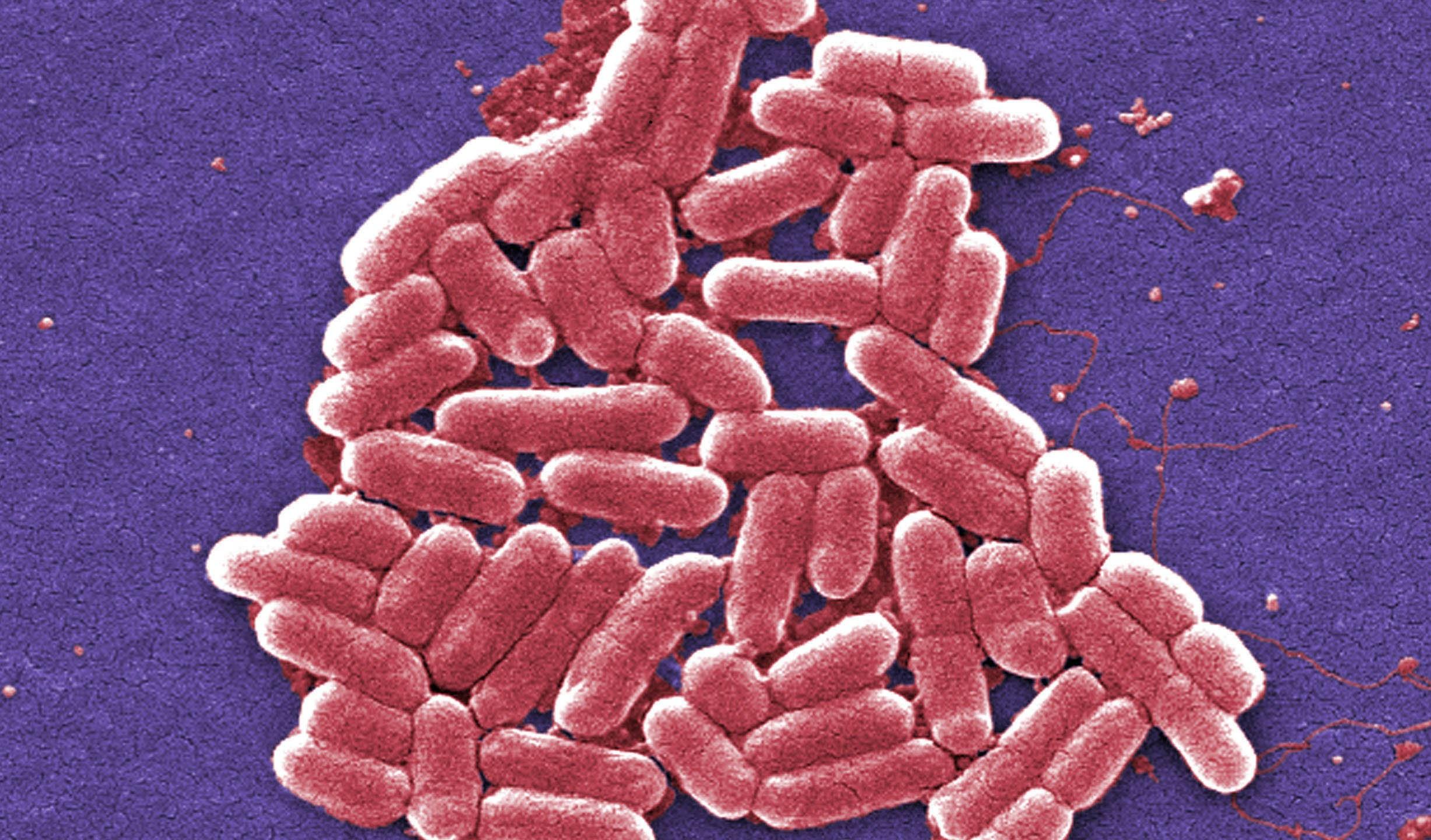 Superbug Q And A_181185