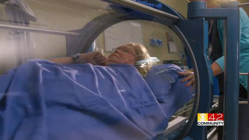 medical west hyperbaric chamber_279743