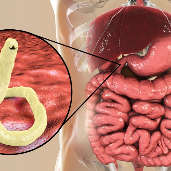 shutterstock_1062330359 hookworm lowndes county alabama intestinal parasite_1538266462031.jpg.jpg
