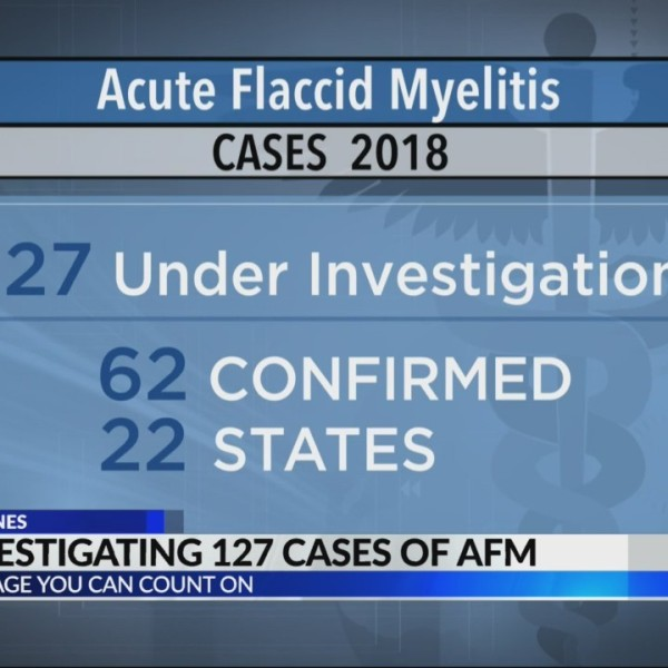 CDC investigates 127 cases of AFM