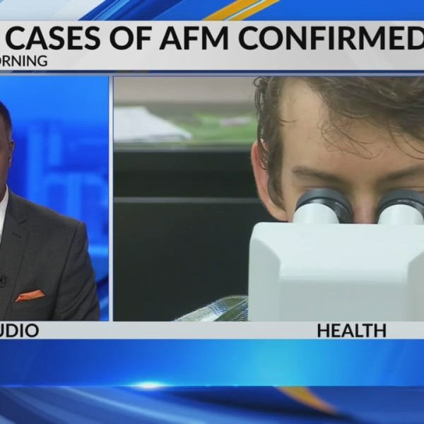 More cases for polio like virus