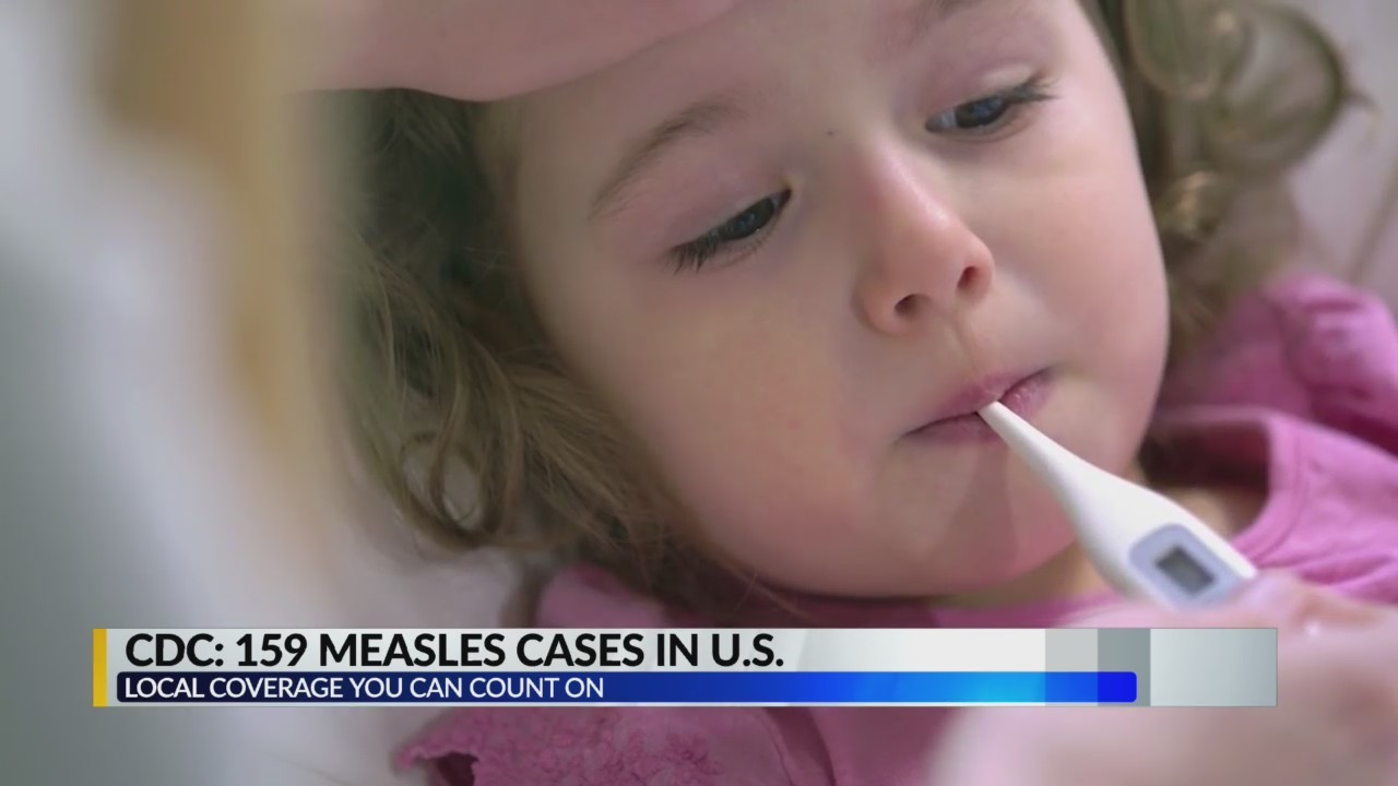 CDC: Measles outbreak the worst in years