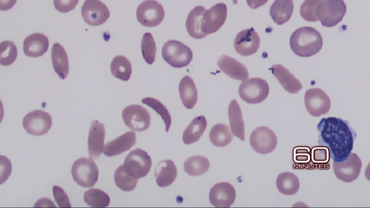 Researchers inch closer to possible cure for sickle cell anemia